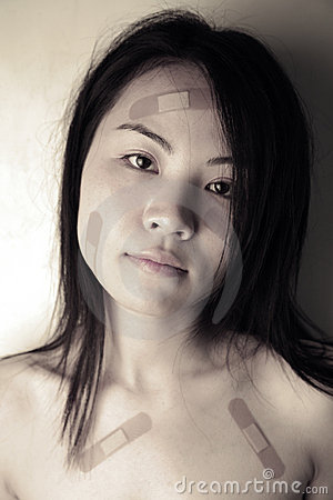 Asian girl with bandages