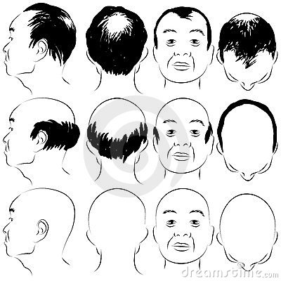 Asian Male Baldness Pattern