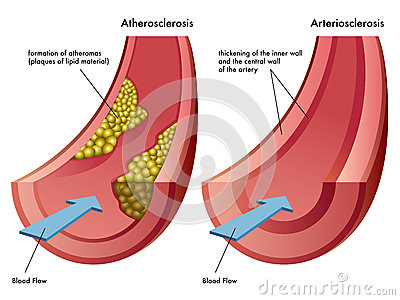 Atherosclerosis & Arteriosclerosis Royalty Free Stock Images - Image ...