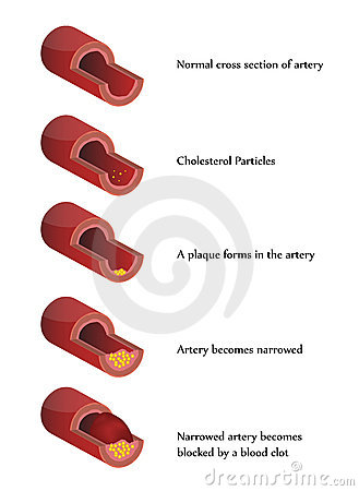 Atherosclerosis illustration. High cholesterol.