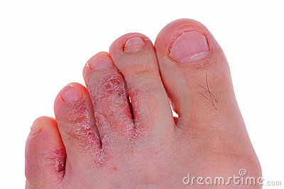 Athlete s foot fungus
