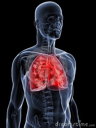 Ausführlicher Lungenflügel