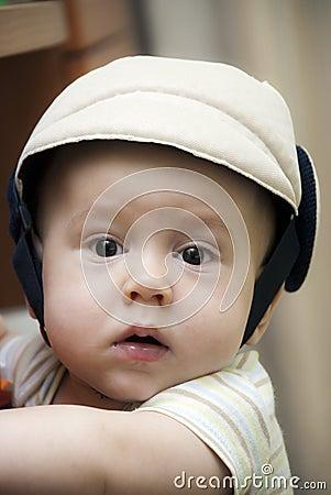 Baby boy in a protective helmet.