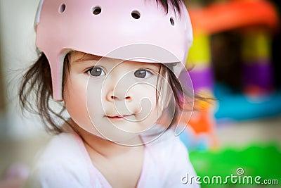 Baby Girl With Orthopedic Helmet