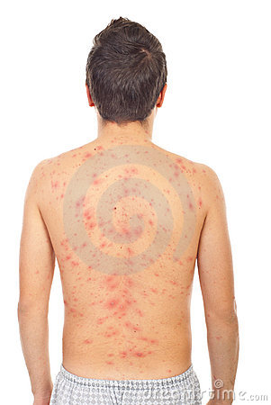 Free Back Of Man With Chickenpox Stock Photo - 17275440