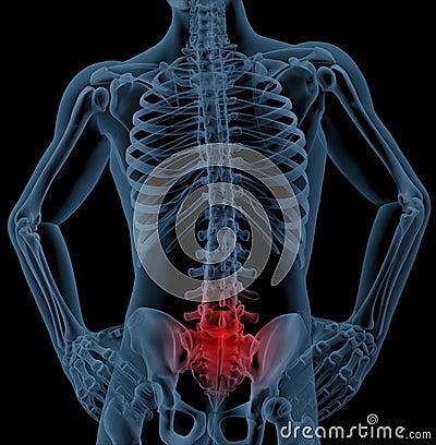 Free Back Pain Stock Image - 16217931