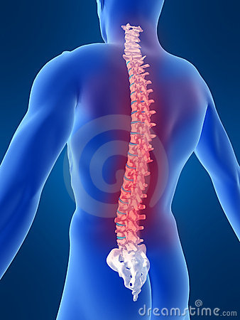 Slipped Disc- Symptoms, Exercise, Treatment Everything you need to know about it.