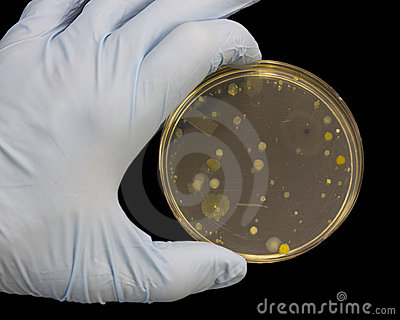 Bacteria, Yeast and Molds