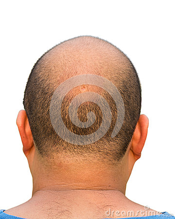 Free Bald Head Isolation Stock Photography - 29411152
