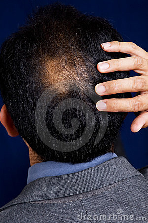 Free Bald Spot Stock Photo - 1558410