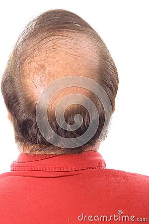 Free Balding Man Stock Photos - 3883743