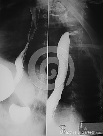 Free Barium Swallowing Study Of A 21 Years Old Woman, Demonstrated Normal Esophagus Both Antero-posterior And Lateral Views. Stock Photography - 29354762