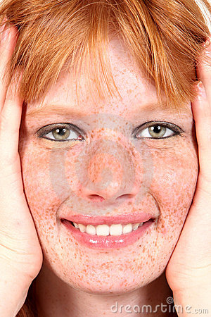Free Beautiful Freckled Model Closeup Royalty Free Stock Image - 9010676