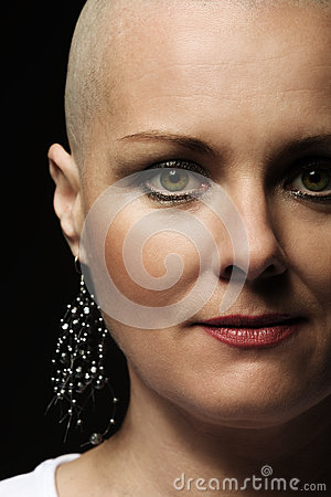 Free Beautiful Middle Age Woman Cancer Patient Without Hair Stock Photos - 91159073