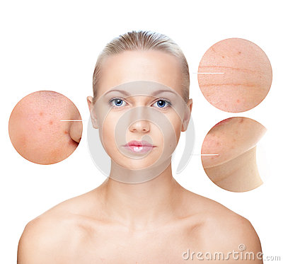 Free Beautiful Woman S Portrait, Skin Care Concept. Royalty Free Stock Image - 35589086