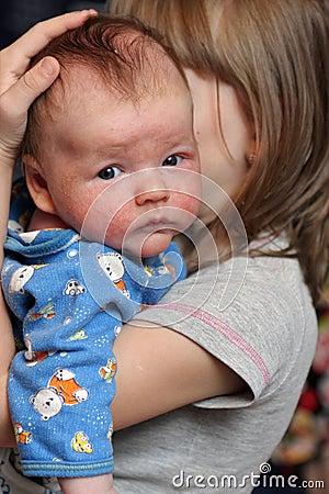 Bebé con eczema en cara