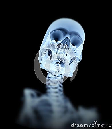 Been 4 van de röntgenstraal