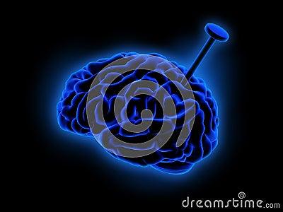 Blå hjärna