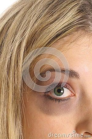 Black eye upclose