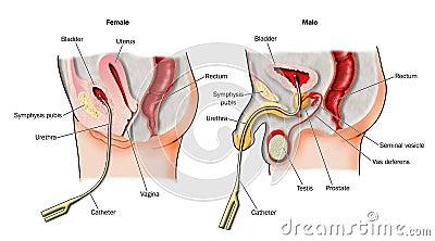 katheter bij vrouw