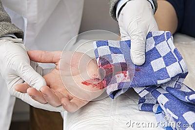 Bleeding cut