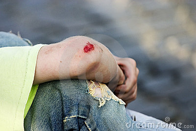 Bleeding Elbow Royalty Free Stock Images Image 229489
