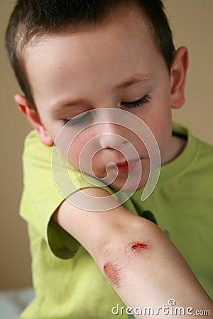 Free Bleeding Injured Boy Stock Photo - 9490900