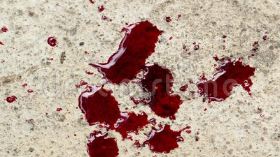 Blood dropping onto floor. stock footage. Video of motion ...
