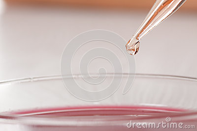 Blood in petri dishes