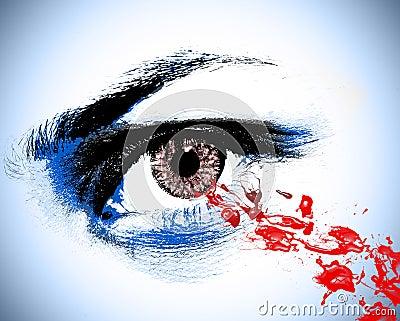 Blood spot eye