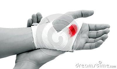 Bloody gauze
