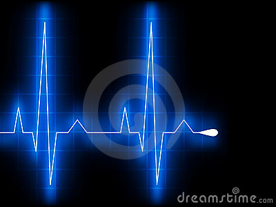 Blue heart beat. Ekg graph. EPS 8