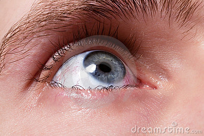 Blue men eye with red blood vessels