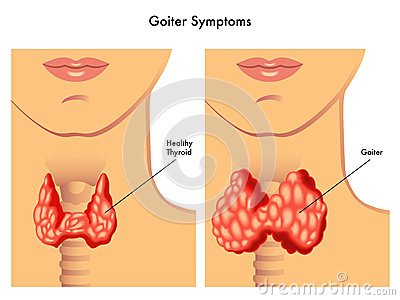 Diferencia visible entre una glándula tiroides saludable y la inflamada.