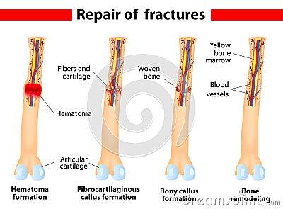 Bone fracture healing process