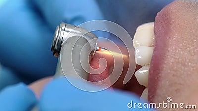 Bouche dentaire d'hospitalisé de Boer de foret banque de vidéos