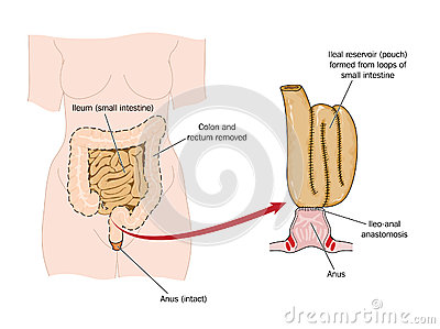Bowel removed and rectal pouch