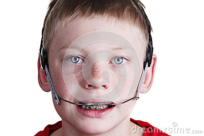 boy-braces-headgear-29173052.jpg