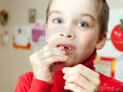 Boy holding missing teeth
