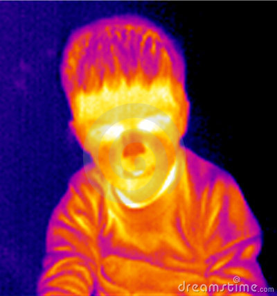Boy portrait thermograph