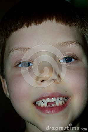 Boy showing off new front teeth
