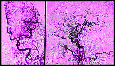 Brain angiograhy, arteriography