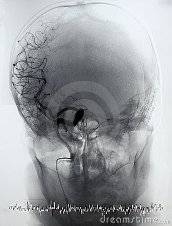 Brain angiography, arteriography