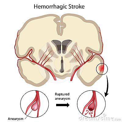 Brain hemorrhagic stroke