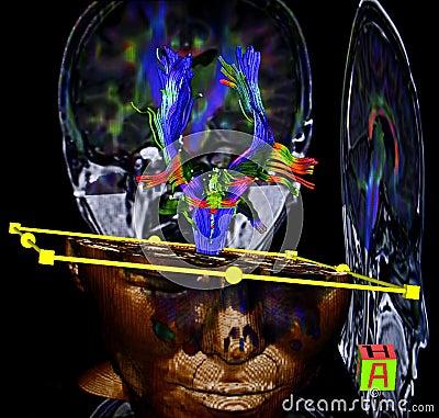 Brain, diffusion tensor MR imaging