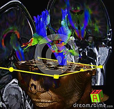 Brain diffusion tensor MR imaging