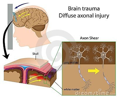 Brain trauma with axon shear