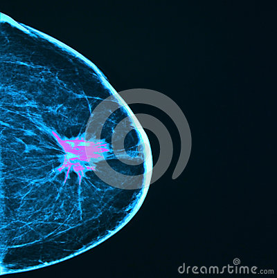 Free Breast Cancer, Mammography Stock Image - 34627921