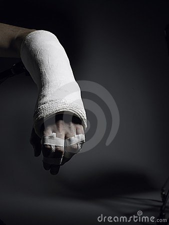 Broken arm and fingers