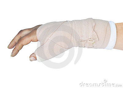 Broken wrist in a cast